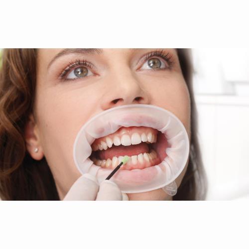 OptraGate Regular (Latex Free Lip and Cheek Retractor)